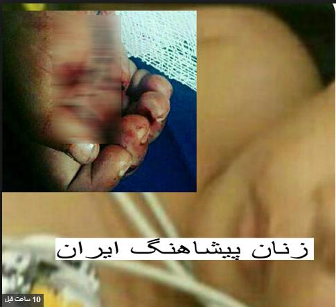 شکستن استخوان و سوزاندن بدن کودک 18 ماهه باسیگار
